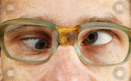 Cross-eyed person in old-fashioned spectacles stock photo, The cross-eyed person in old-fashioned spectacles close up by Alexey Romanov