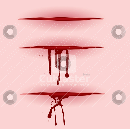 Blood cut bleeding stock vector clipart, Three illustrated open wounds with blood pooring from them by Michael Travers